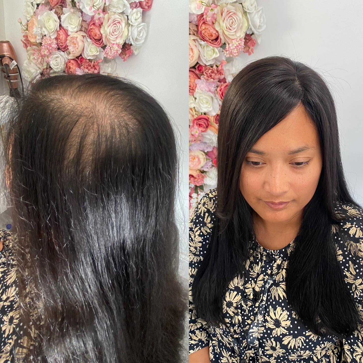 hairloss system 1